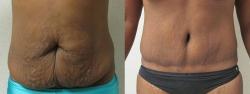 abdominoplasty-patient-04a