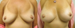 breast-aug-patient-011