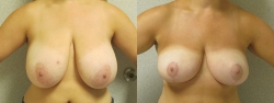 Breast-Reduction-Pt-2