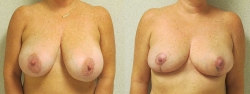 breast-reduction-patient-03a
